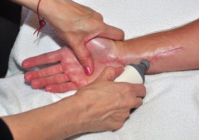 hand stimulation